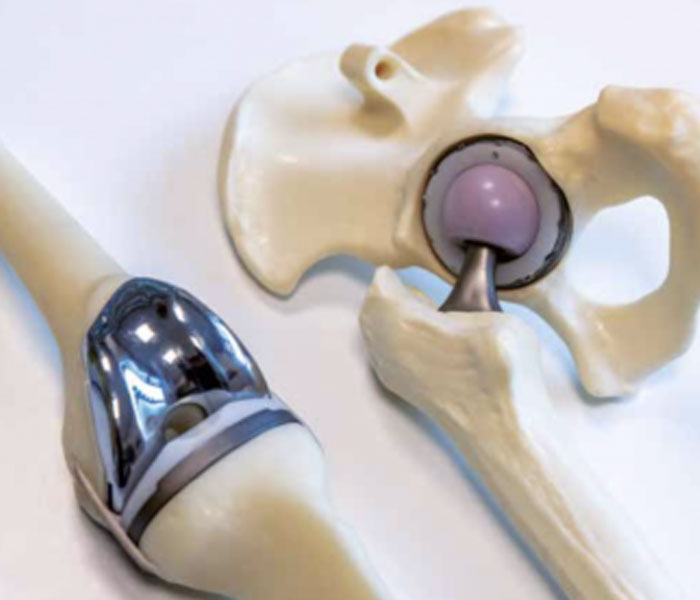 CortoClinics De volgende stap bij heup en knieartrose